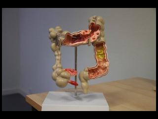anatomisch model dikkedarm